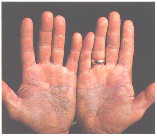 Psoriazisul, dincolo de manifestările dermatologice